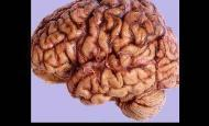 Beyin Damarlarında Tıkanıklık