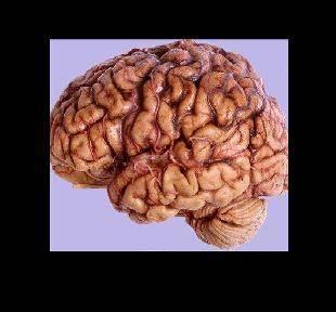 beyin damaralarında tıkanıklık