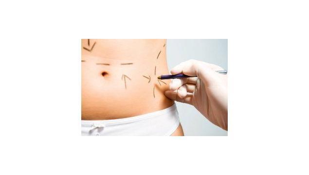 Abdominoplasti ile Karnınız Artık Sımsıkı
