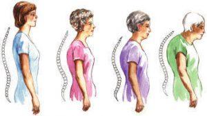 Osteoporoz Nasıl Oluşur