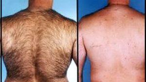 Erkeklerde Lazer Epilasyon Öncesinde Dikkat edilmesi Gereken Konular